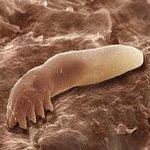 Това е червеят, който причинява розацеята