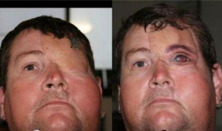 Човек без око получи уникална татуировка