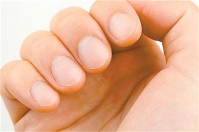 Познайте от какво сте болен по ноктите на ръцете