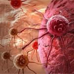 Българите умират от рак и болести на храносмилателната система