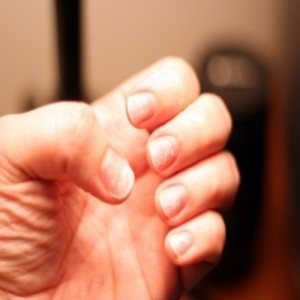 Състоянието на ноктите може да подсказва за рак