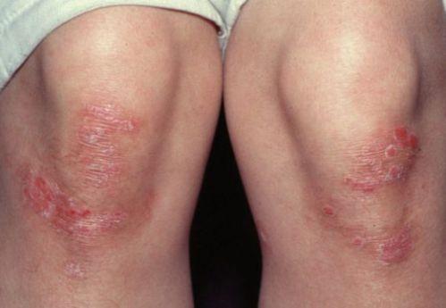 Лечение на псориазис с Цитросепт и още 5 начина