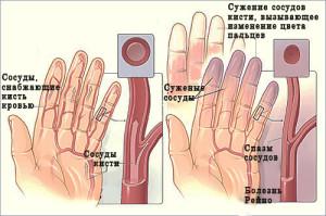 синдром на рейно лупус