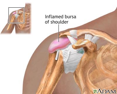 Болки в рамото при движение назад