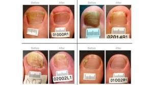 посиняване на нокти