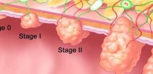 Развитие на рак на дебелото черво
