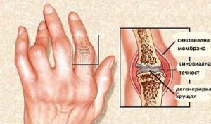 Билколечение и витаминозни храни помагат при болки в ставите от ревматоиден артрит. На снимката – изменения в ставите от това заболяване.