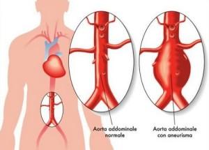 Аневризма на коремната аорта