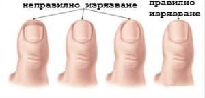 Правилно изрязване на ноктите, за да не се стига до растящи навътре нокти
