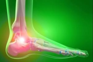 Пикочна киселина - главната причина за подагра. Най-много са засегнати ставите на пръстите на краката