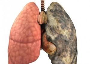 Вашият бял дроб има нужда от периодично пречистване