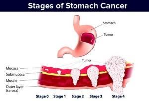 Рак на стомаха – стадии