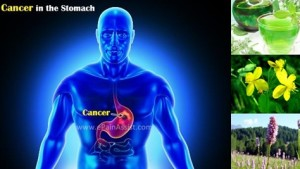 Рак на стомаха – полезни рецепти и билки, хранене, причини, симптоми, лечение