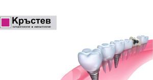 още ползи от зъбни импланти