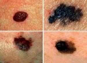 Aviso sinais de câncer de pele.