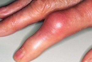 Подаграта може да засегне и пръстите на ръцете